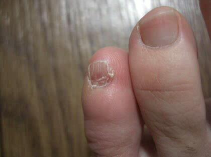 足の小指の爪が痛いです(二度目ですごめんなさい) - その他 ...