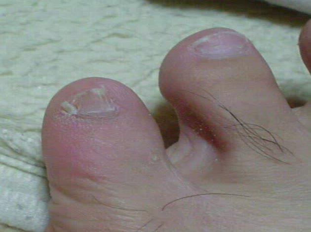 の ヒビ 足 放置 小指