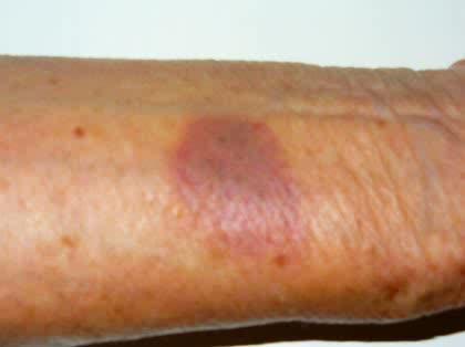 主な皮膚の病気一覧・症例画像【医師が解説】 [皮 …