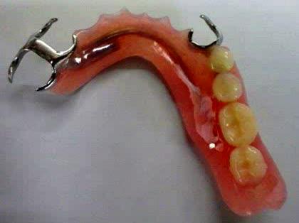 【バキューム】歯科治療フェチ【お願いします】 [転載禁止]©bbspink.comYouTube動画>36本 ->画像>11枚