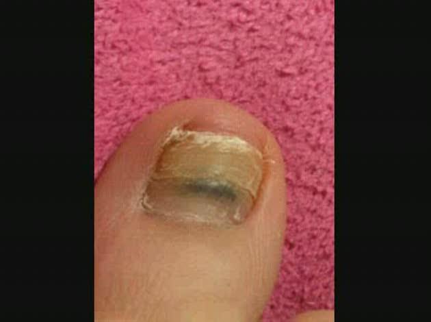 の 親指 爪 の 黒い 足 が