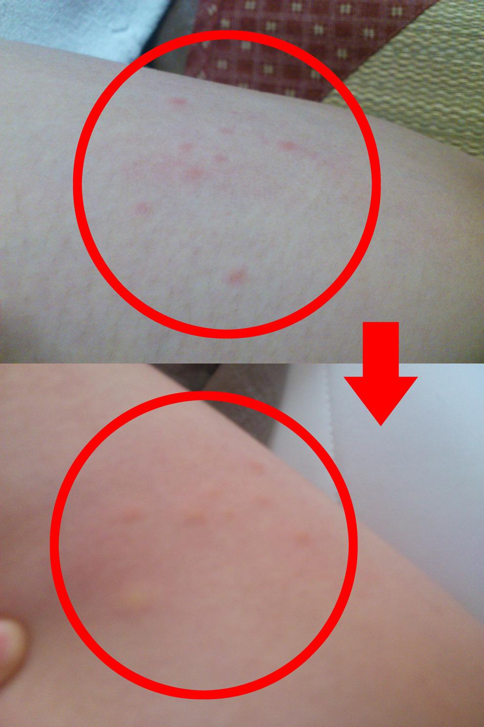 跡 刺され た ノミ に 猫ノミの症状写真(人)を公開!【人間が刺されない対策は?】