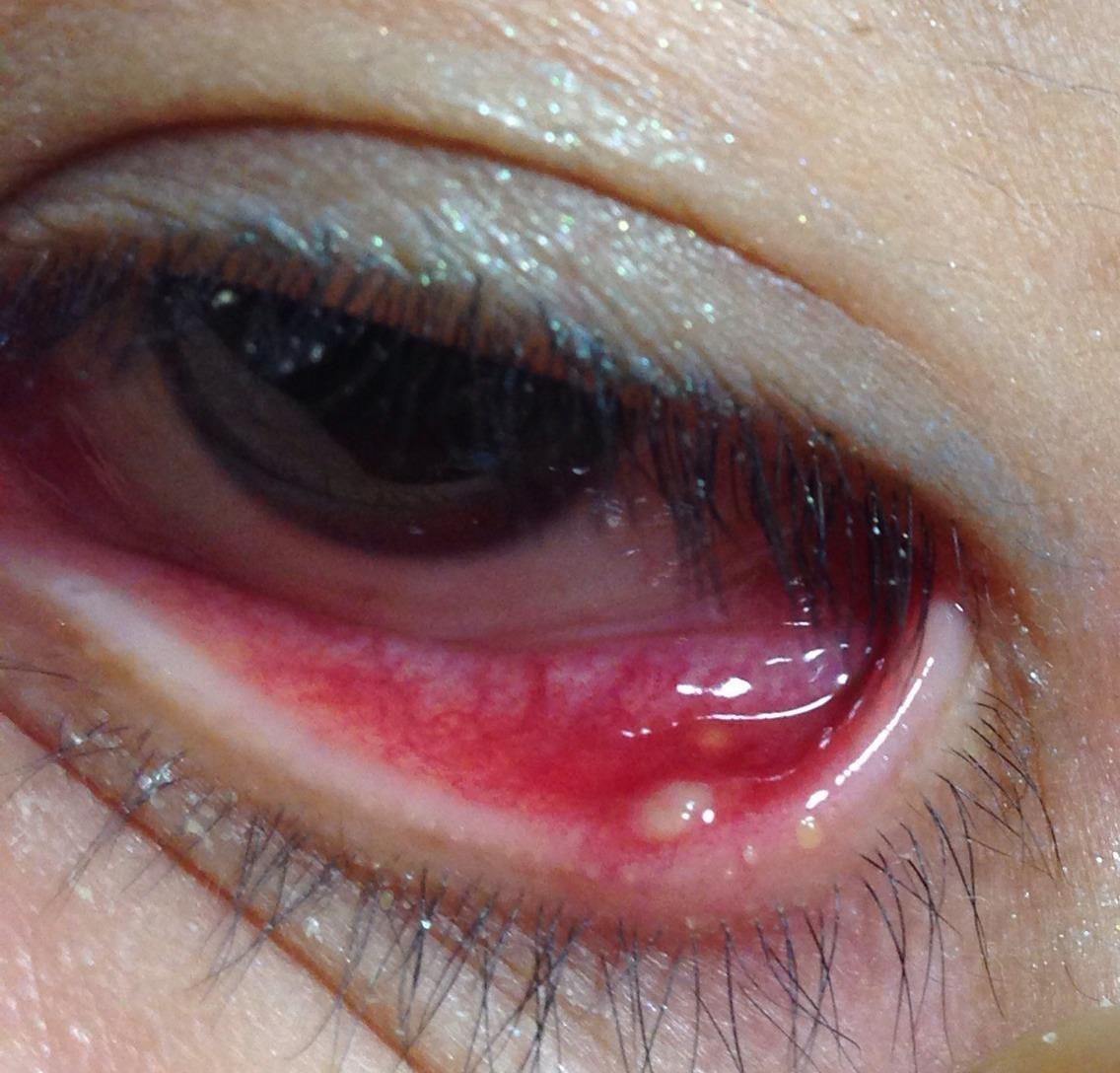 ふち でき 白い の もの 目