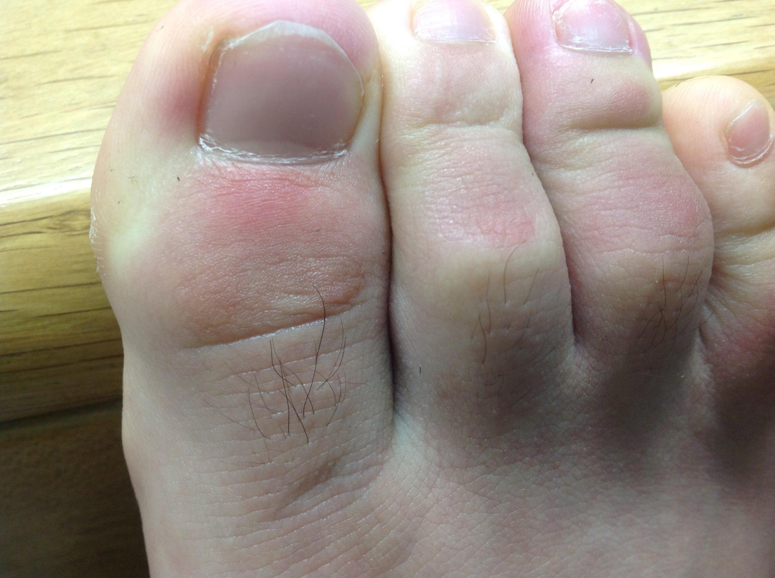 親指 足 痛い の 足の親指の付け根が痛い原因や足の疾患と対策方法について