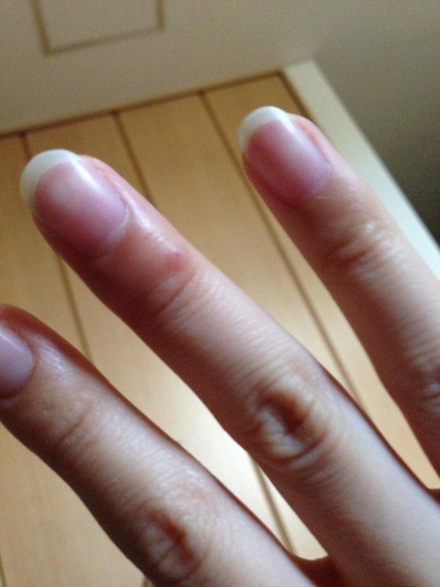 一週間前から指が痒くて腫れてる!!