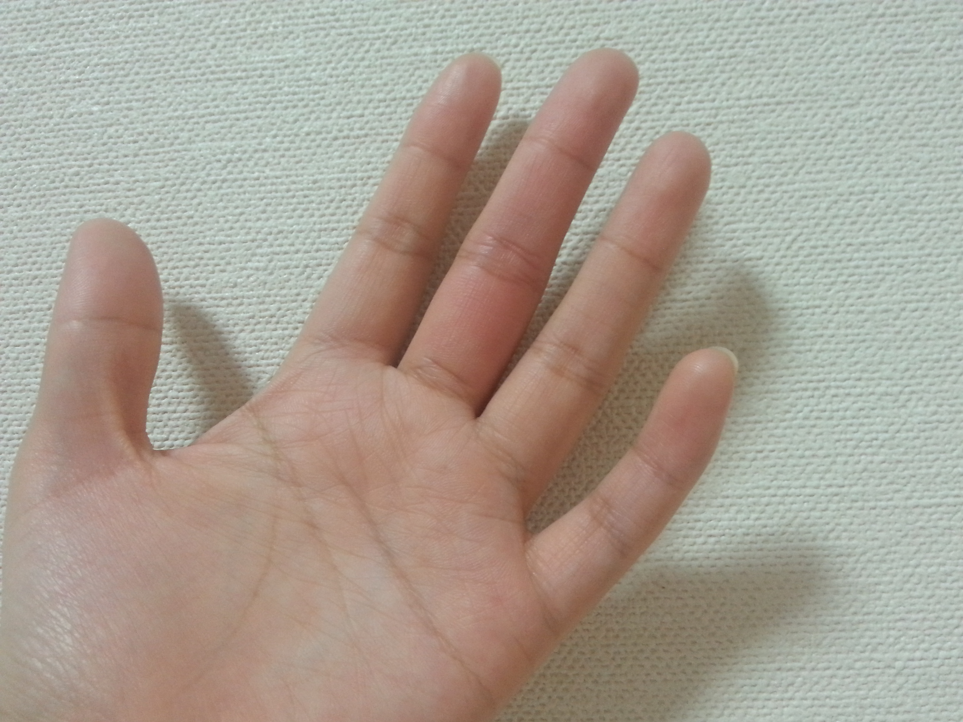 指 の 腹 痛い