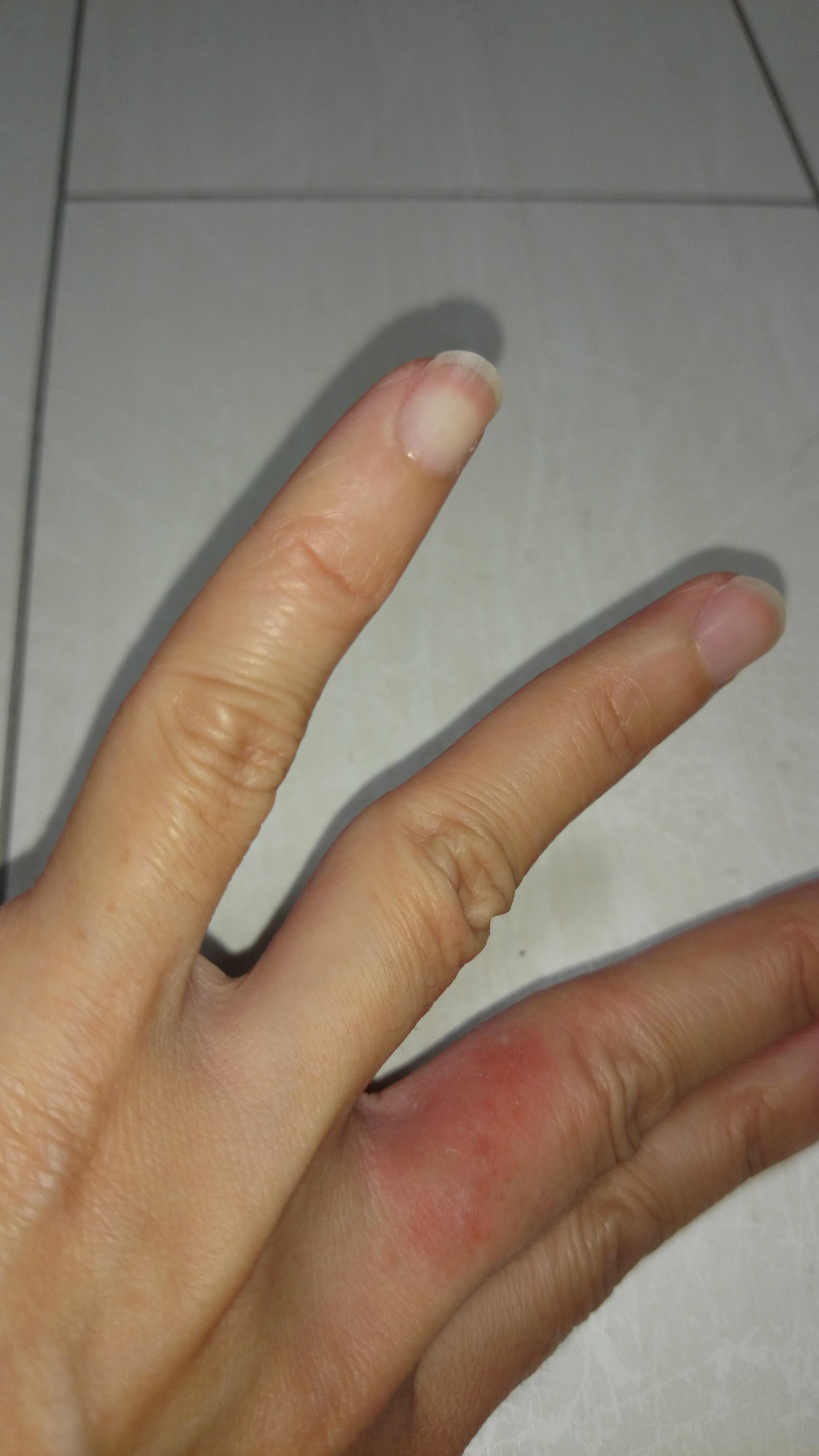 水虫 手 指