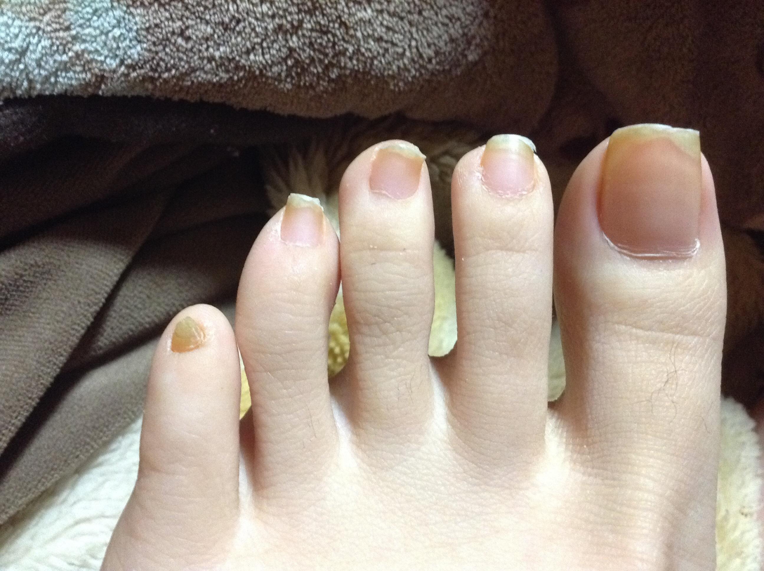 ぶつけ た 痛い 小指