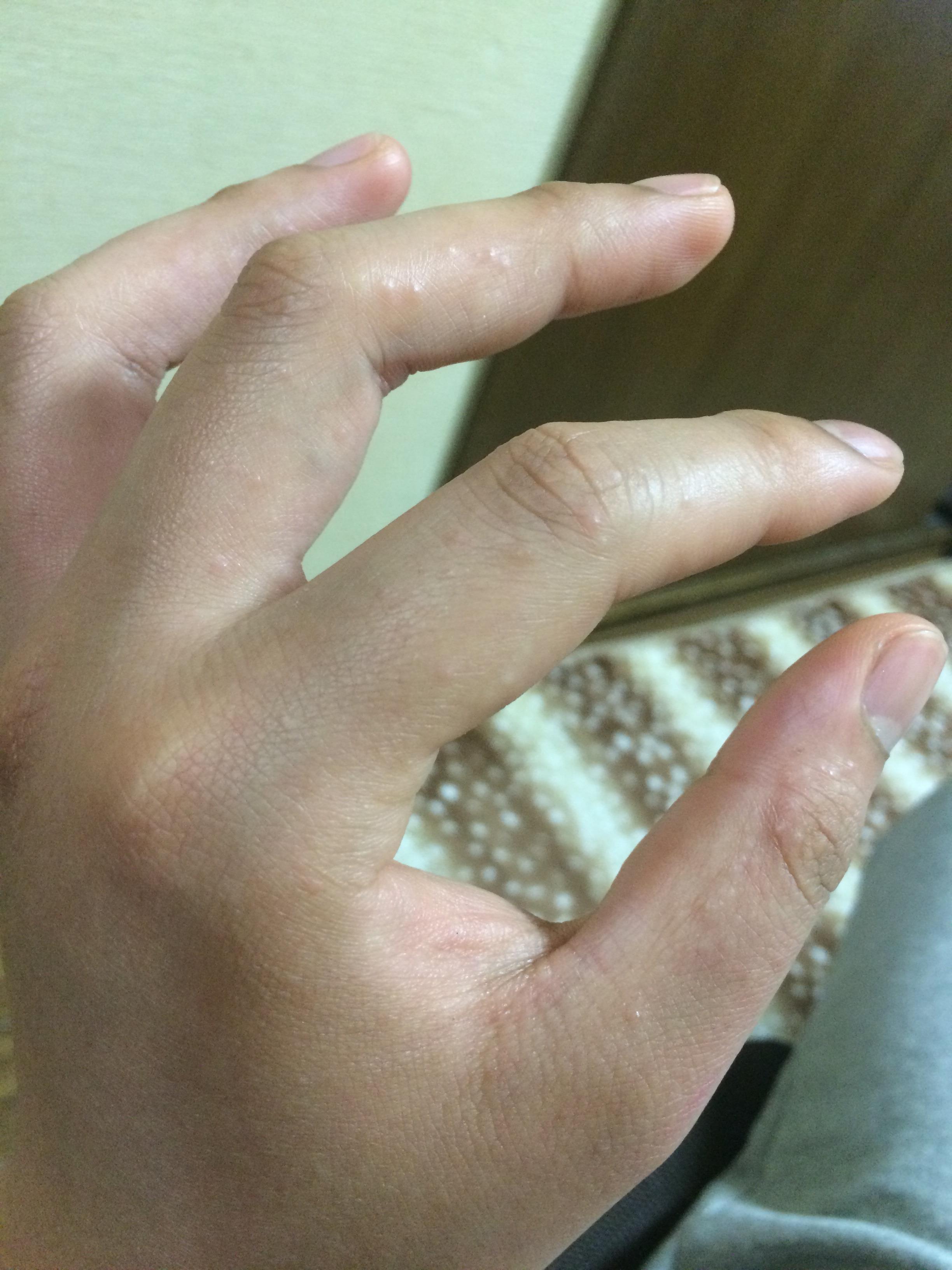 ぶつぶつ 透明 かゆい 手のひら