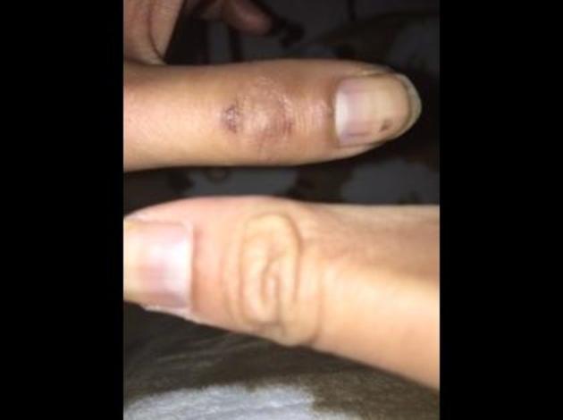 指 挟ん だ 内出血 腫れ