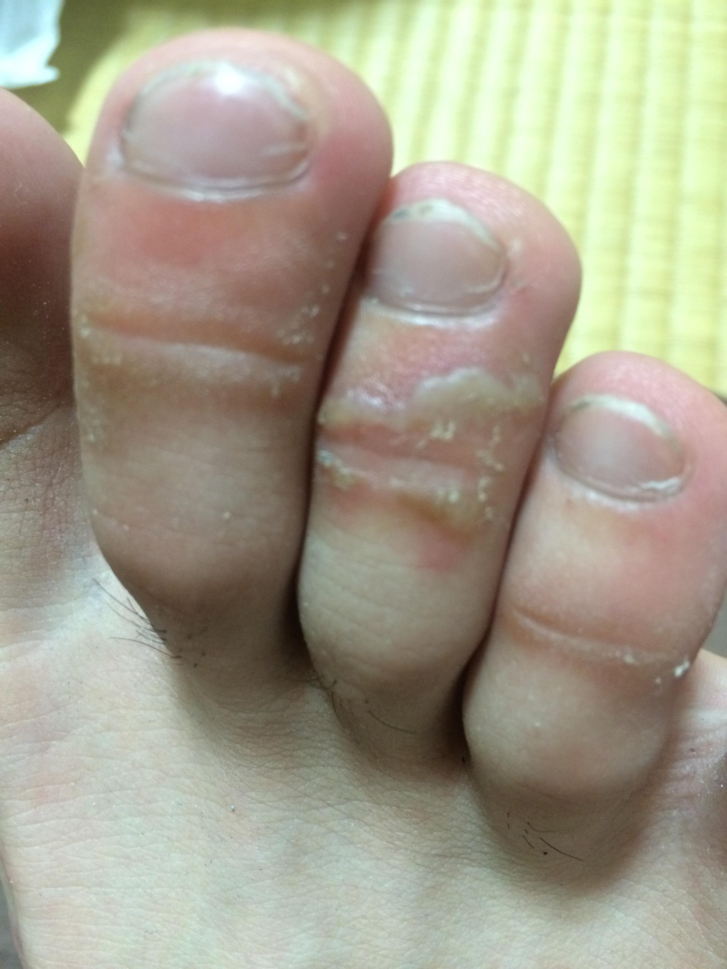 かゆいわけでもなく、水虫ではないと思うのですが、 靴と擦れて水ぶくれになっただけですかね? 何かわかる方いらっしゃいましたら教えてください