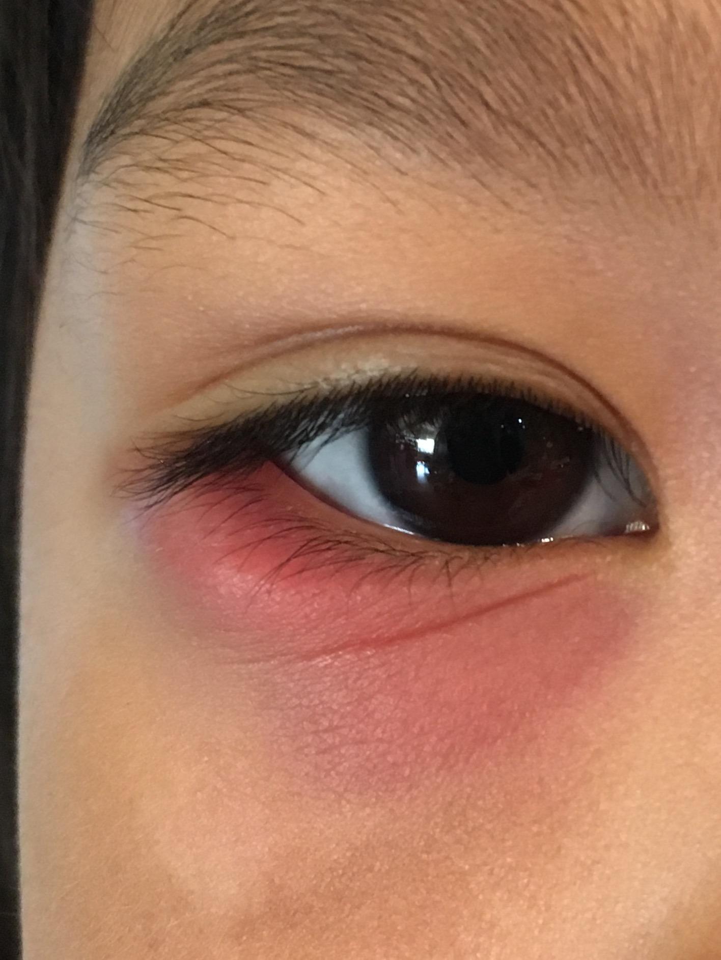 子供の目が赤い。何ですか - 病気 解決済み| 【OKWAVE】