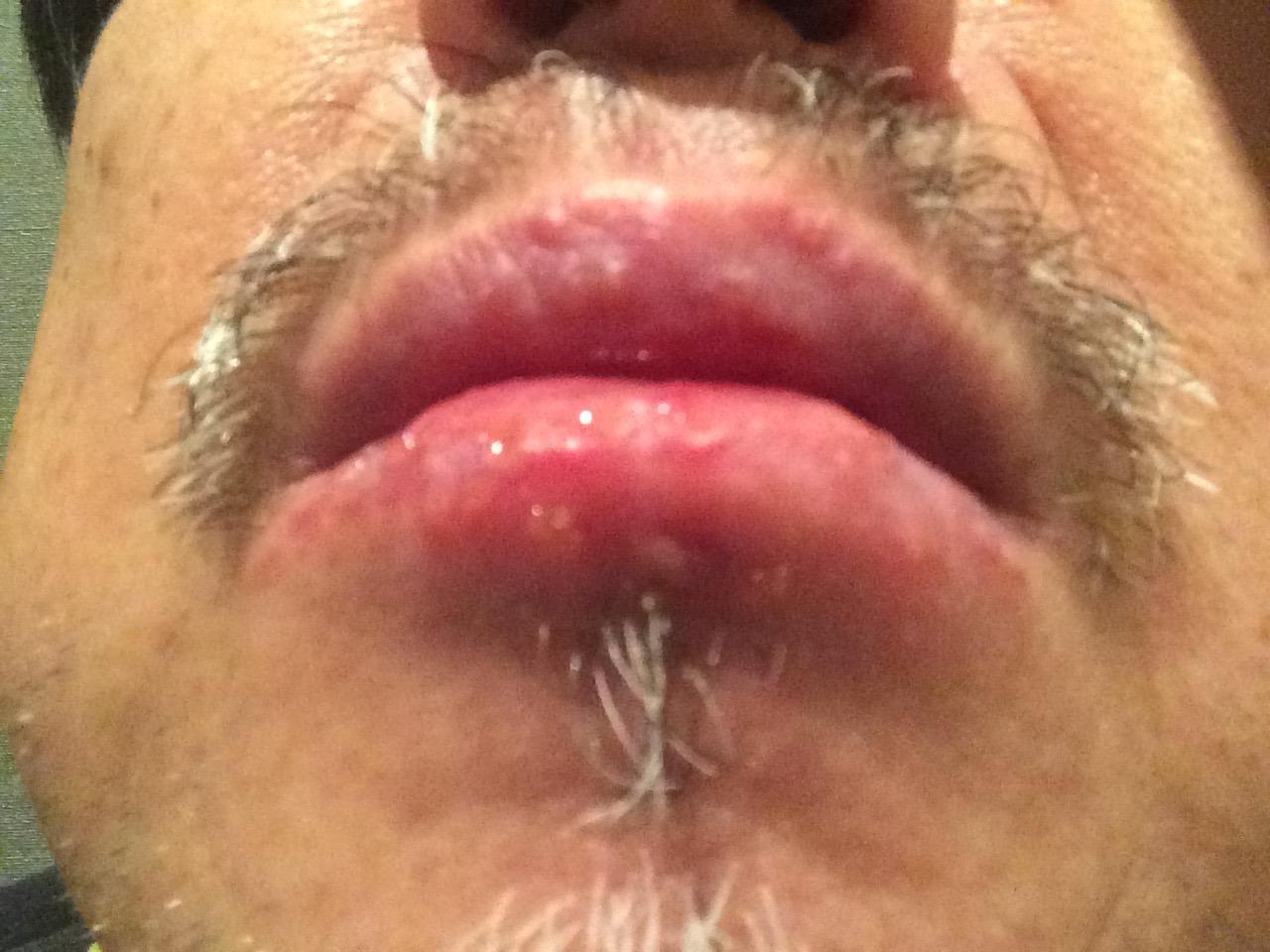 唇 アズノール軟膏