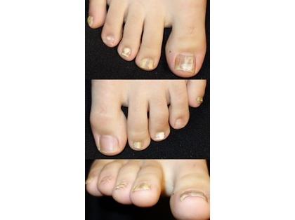 質問 Itmedia 足の爪が白い原因