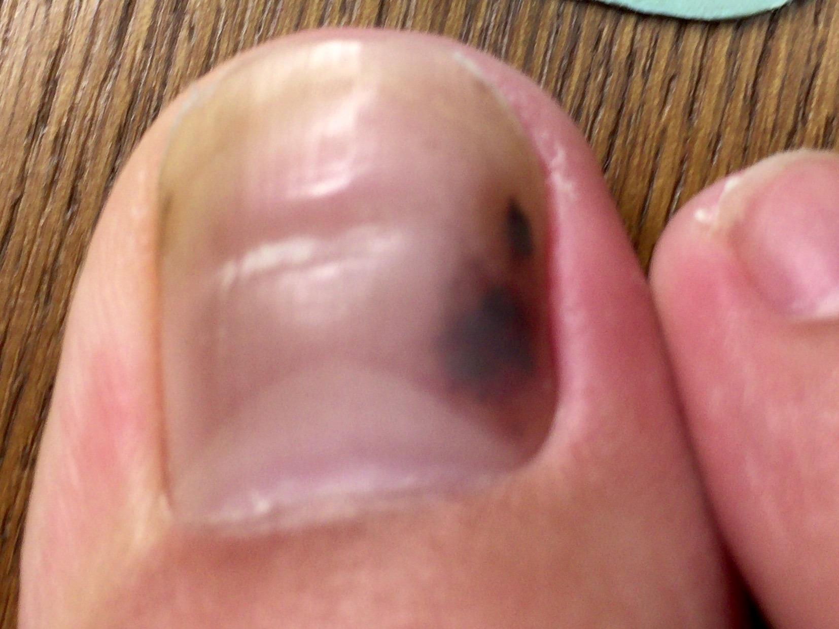 皮膚病 グロ 靴をずっと履いていて指が痛くなったのでそれがいけないのかなと思ってます。でも調べると皮膚ガンとか書いてあったのでとても怖いです。血豆ならいいですが.