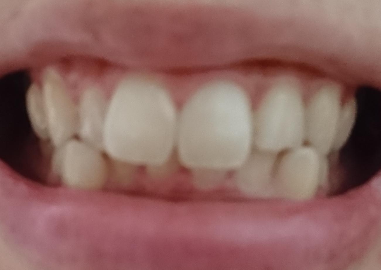 したい ない 治 歯並び お金