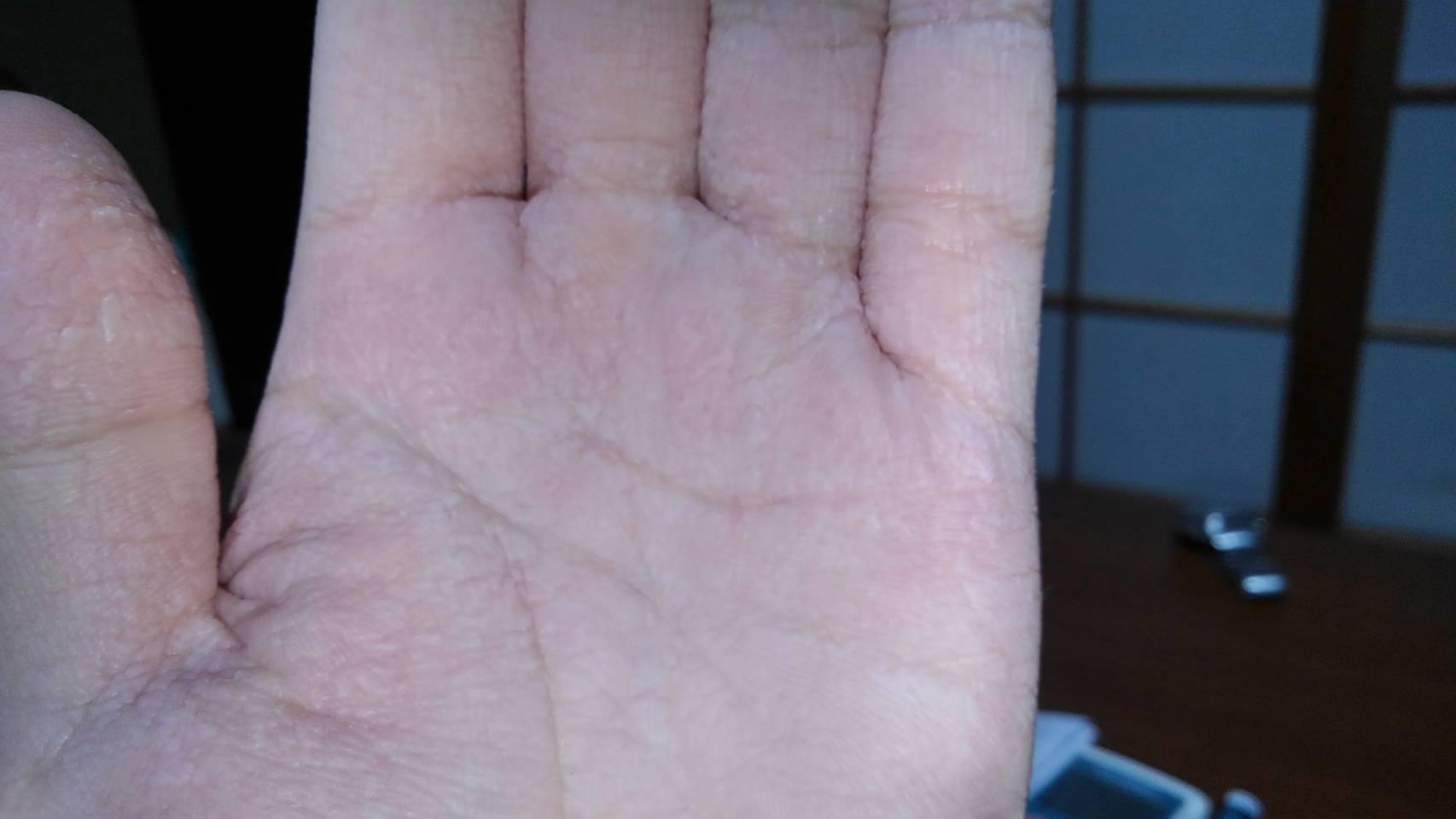 ブツブツ 手のひら かゆみ
