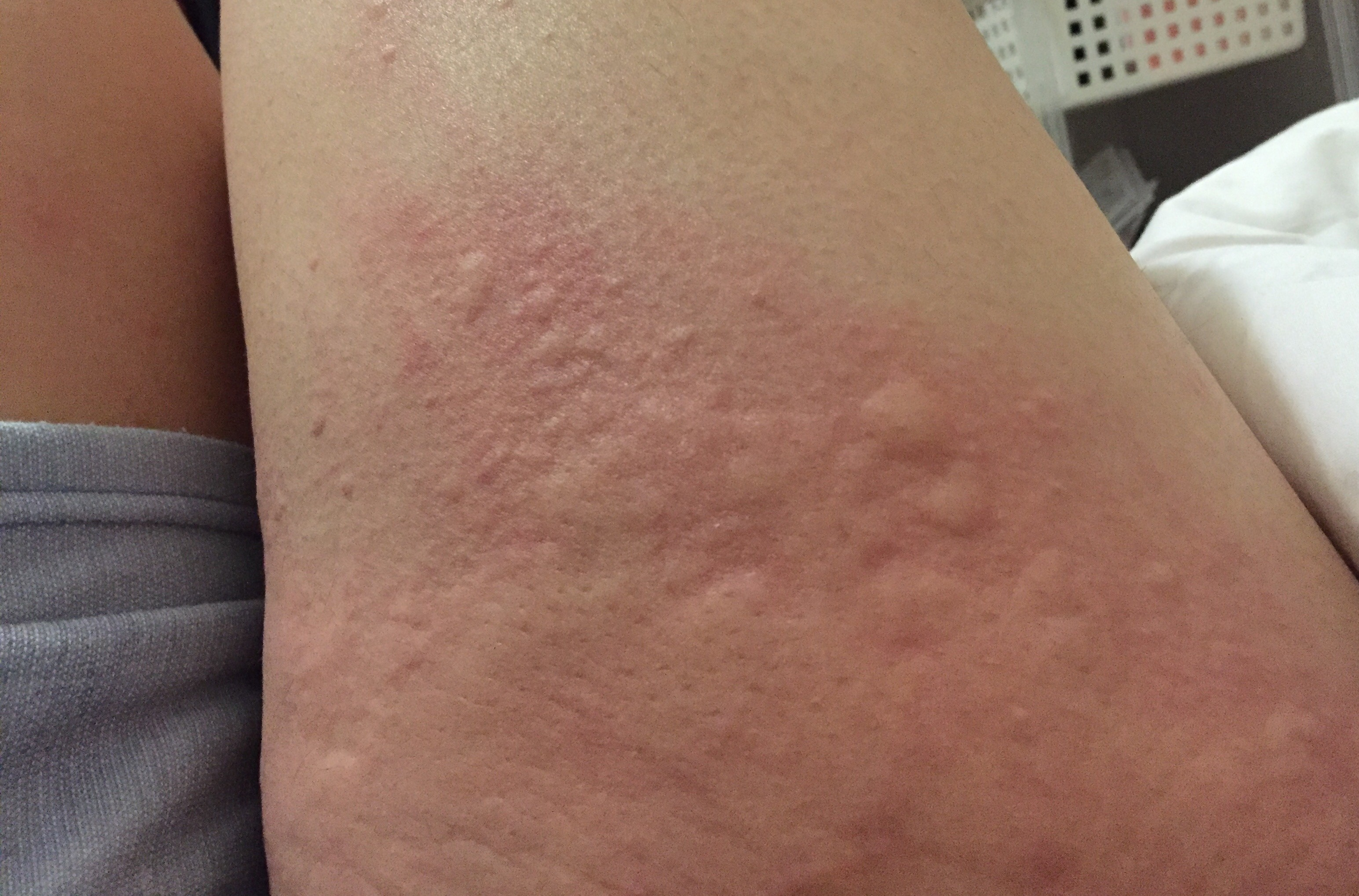 蕁 麻疹 寒い