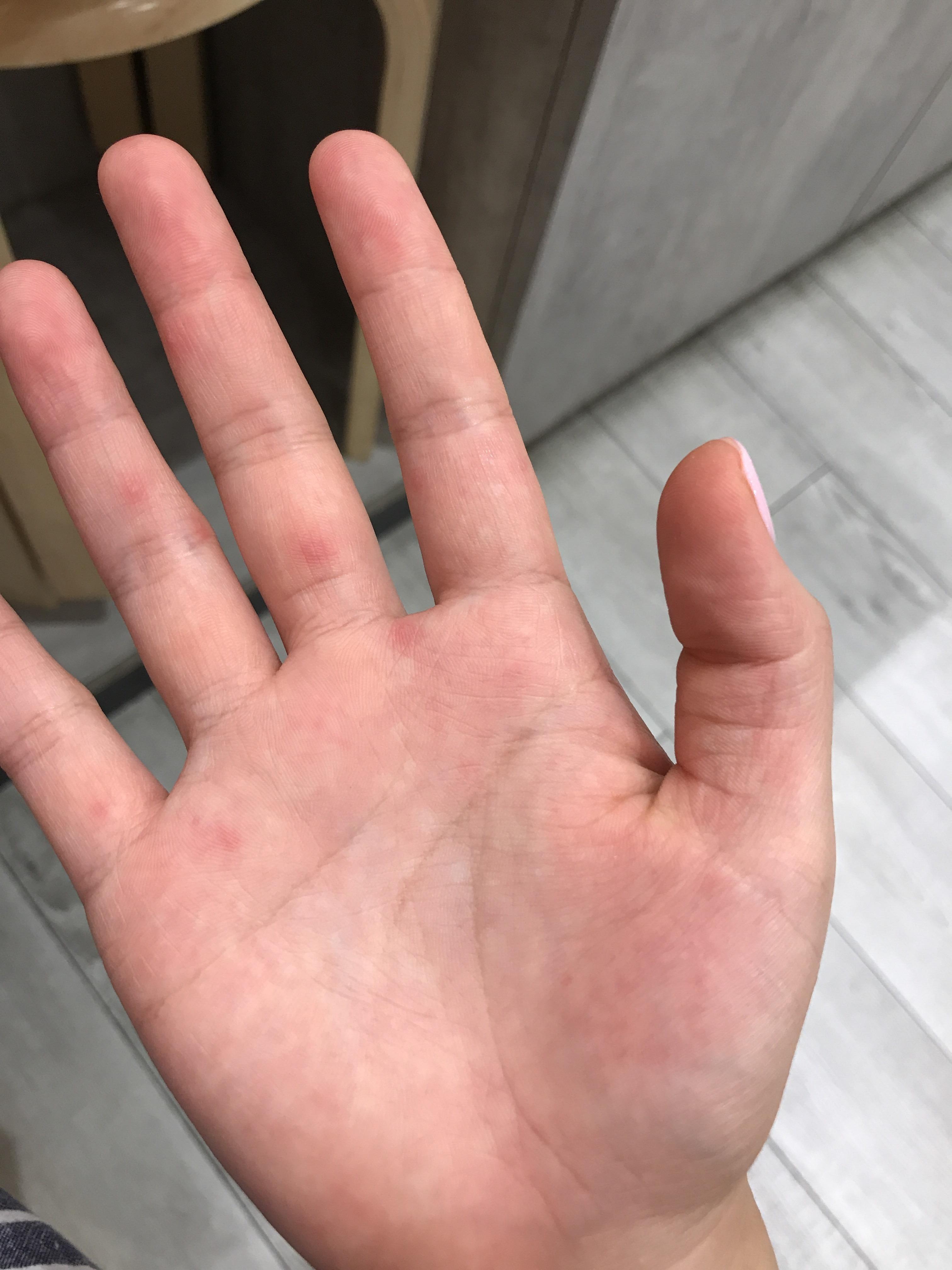 手の甲 赤い 点 手の甲に赤い斑点ができる原因、症状。かゆみの有無で治療が違う?