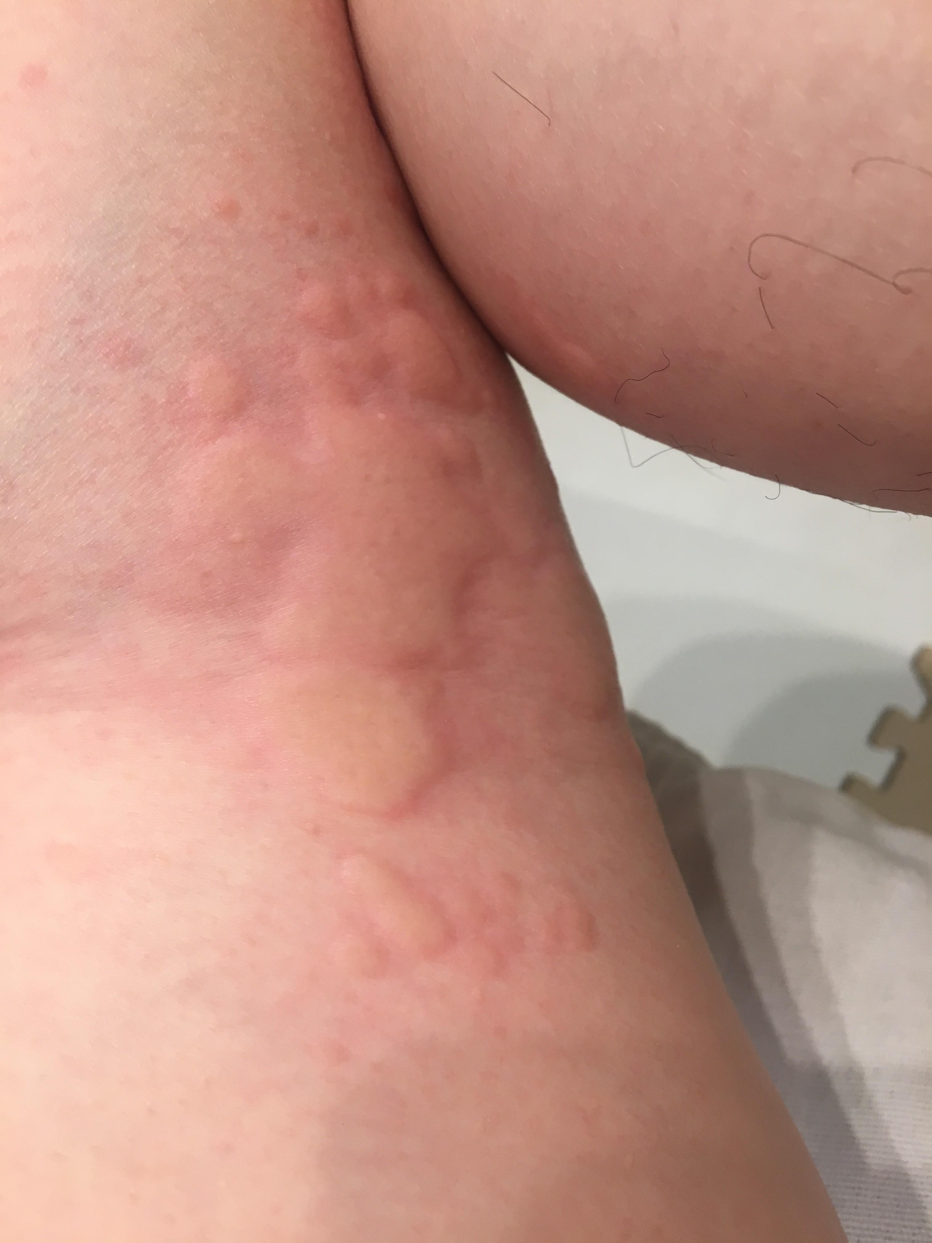 蚊 に 刺され た よう な 腫れ