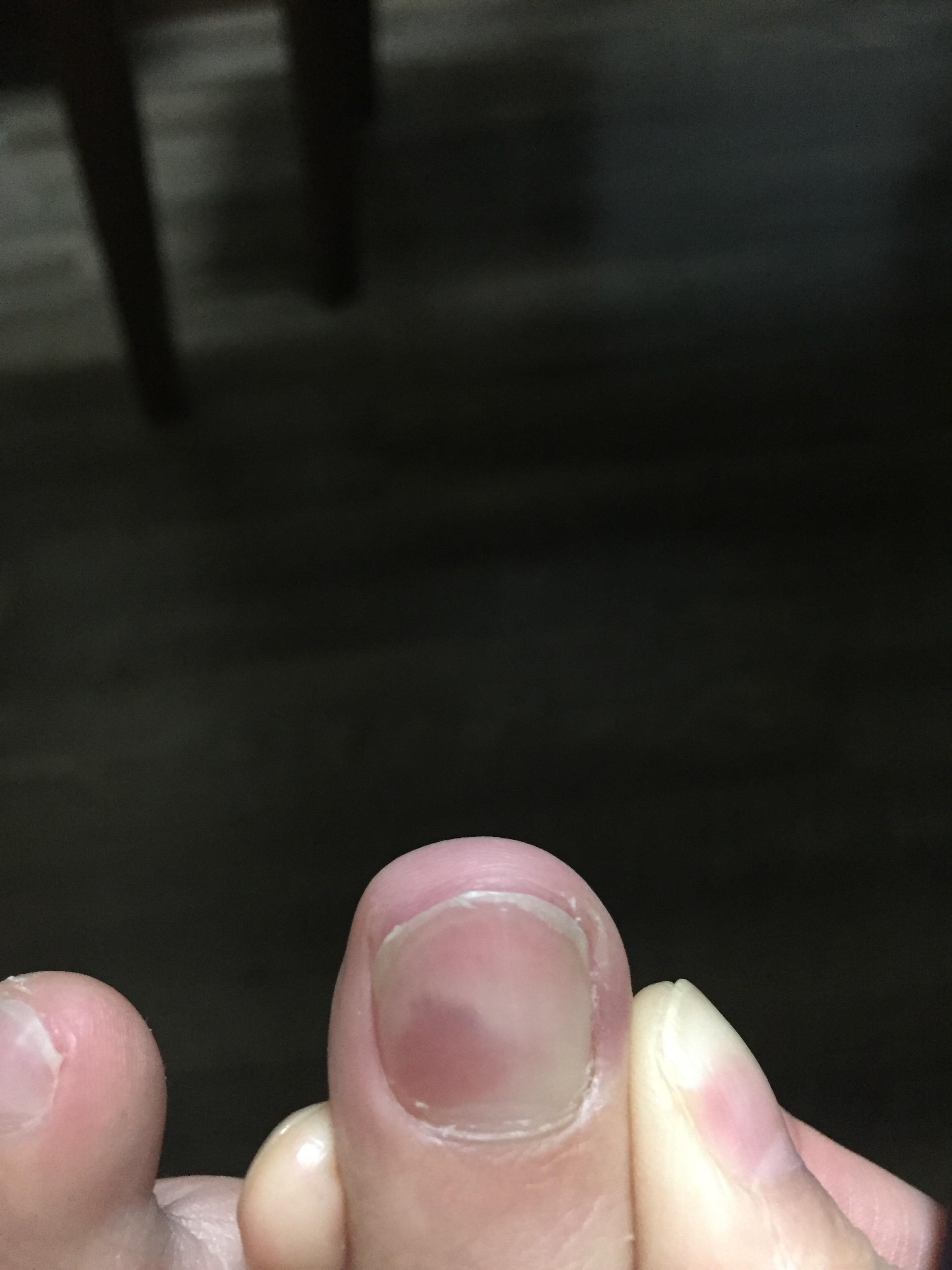 剥がれ 足 の た の 爪 が 親指