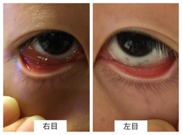 虫刺されのような腫れ 目