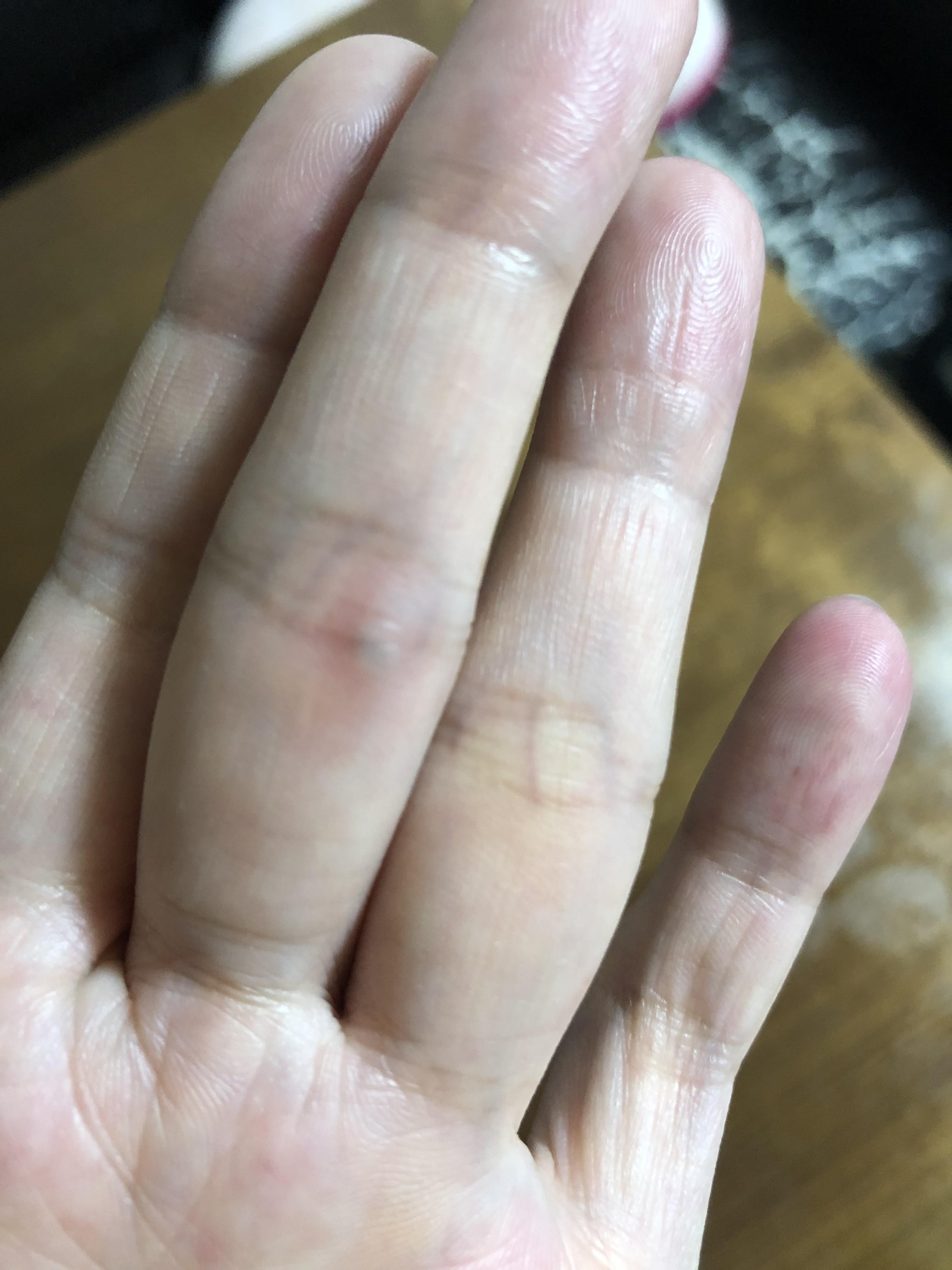 指 関節 押す と 痛い 何 科